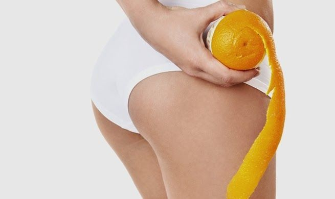 celulitis, piel de naranja